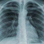 Chụp X quang phổi bao nhiêu tiền?