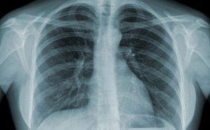 Chụp Xquang phổi là phương pháp để xác định nhiều bệnh lý ở phổi