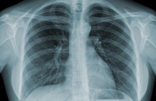 Chụp X quang phổi chẩn đoán bệnh lý về phổi