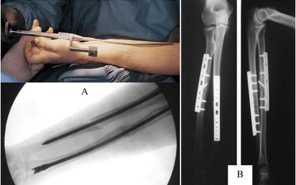 Kết hợp xương bằng nẹp vít là phương pháp hiệu quả