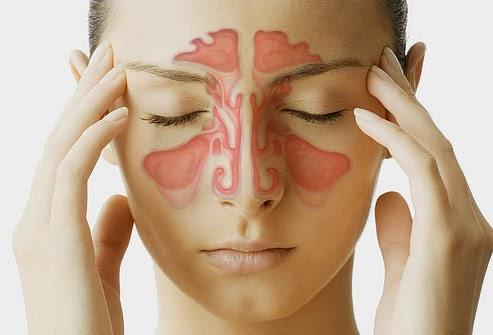 Viêm xoang thường xuất hiện một số triệu chứng như chảy nước mũi, ngửi kém, đau nhức mũi mặt, nhức đầu, sốt,…