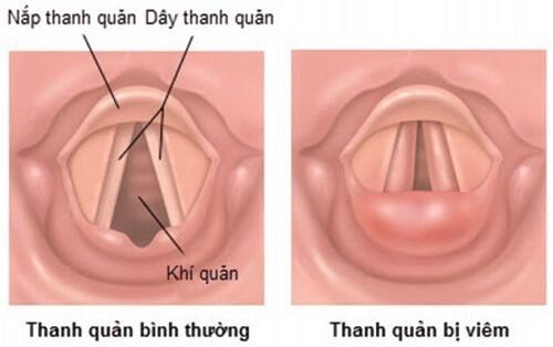 Nắp thanh quản được cấu tạo từ sụn có hình tương tự như lá cây và nằm ở đáy lưỡi.