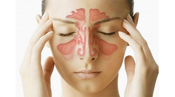 Viêm xoang ảnh hưởng không nhỏ đến đời sống sinh hoạt hàng ngày của bệnh nhân