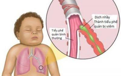 Phải làm gì khi bé bị viêm phế quản