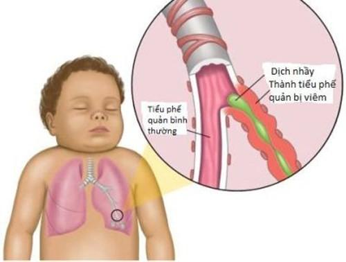 Viêm phế quản  tình trạng niêm mạc của các phế quản trong phổi bị viêm