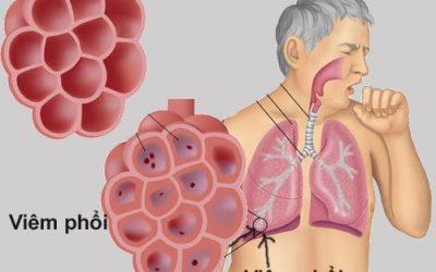 Triệu chứng lâm sàng và cận lâm sàng của bệnh viêm phổi