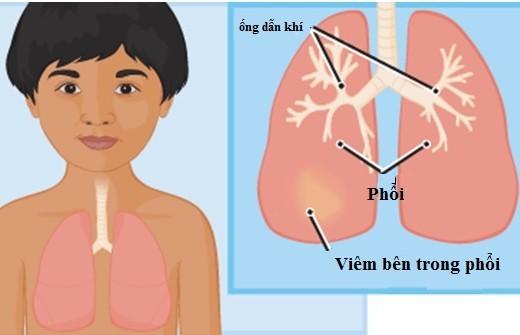 Viêm phổi là một trong những bệnh thường gặp ở trẻ em và là một trong những nguyên nhân hàng đầu gây tử vong ở trẻ nhỏ