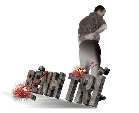 Bệnh trĩ có thể tự phát hiện bằng những dấu hiệu lâm sàng