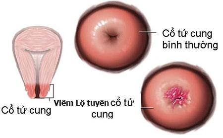 Viêm lộ tuyến cổ tử cung điều trị như thế nào?