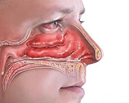 Các yếu tố gây viêm mũi dị ứng cấp tính có thể từ ngoài vào hốc mũi hoặc bằng đường máu