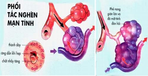 Bệnh phổi tắc nghẽn mạn tính có thể gây nên biến chứng nguy hiểm