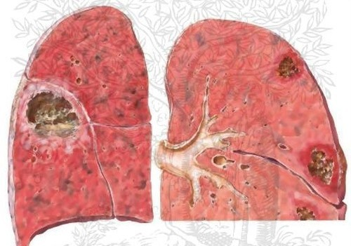 Áp-xe phổi là một viêm nhiễm cấp tính gây hoại tử ở nhu mô phổi, tạo nên một hay nhiều hang chứa mủ.