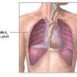 Các phương pháp xử lí tràn dịch màng phổi