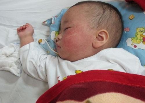 Trẻ bị sốt phát ban cha mẹ cần chăm sóc trẻ đúng cách
