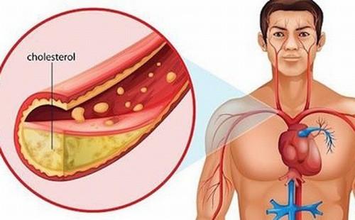 Cholesterol cao là nguyên nhân gây nên các bệnh lý tim mạch