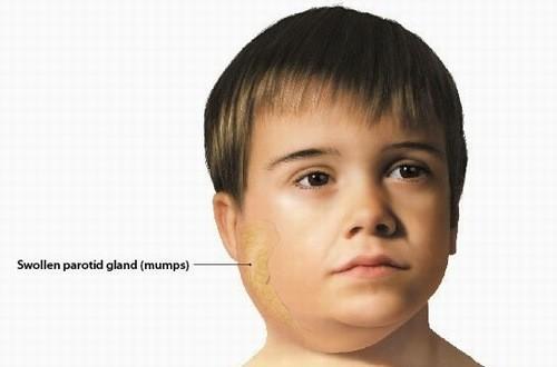 Phát hiện sớm những dấu hiệu bệnh quai bị