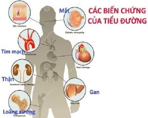 Bệnh tiểu đường ảnh hưởng nghiêm trọng đến bệnh tiểu đường