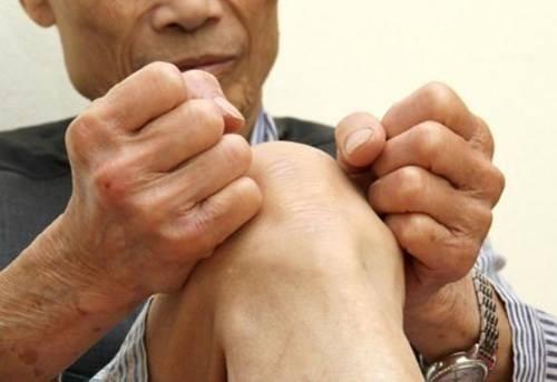 Bệnh phong thấp gây đau đớn hạn chế khả năng di chuyển cho người bệnh