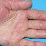 Hiểu đúng về bệnh viêm da cơ địa