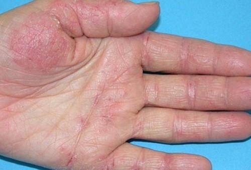 Viêm da cơ địa cần được phát hiện đúng và điều trị đúng cách