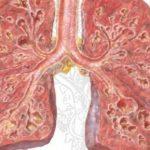 Nguyên nhân gây xơ phổi