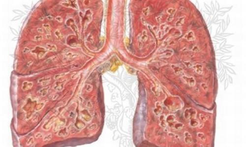 Xơ phổi là một bệnh nghiêm trọng gây sẹo tiến triển của mô phổi