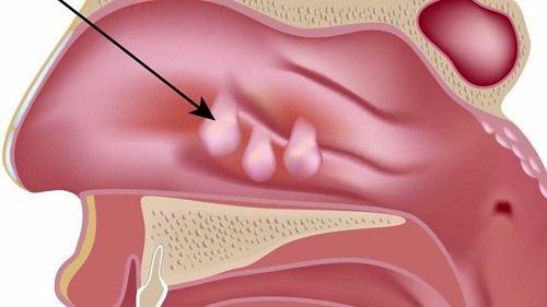 Polyp mũi hình thành do khoang mũi thường xuyên bị kích thích tạo thành một hoặc hai cục thịt ở dạng trong suốt, không có cuống