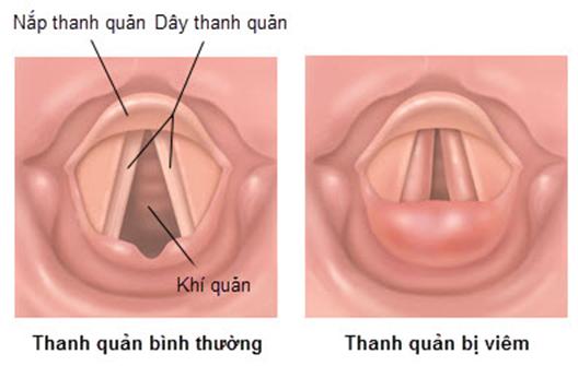 Viêm thanh quản là một trong những bệnh về đường hô hấp phổ biến.