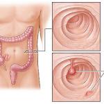 Phẫu thuật cắt polyp đại tràng
