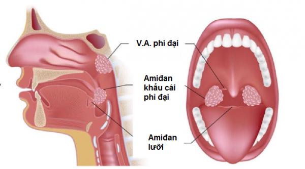 Phì đại VA cần được phát hiện sớm và điều trị đúng cách