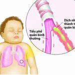 Phương pháp điều trị và cách phòng ngừa viêm tiểu phế quản ở trẻ