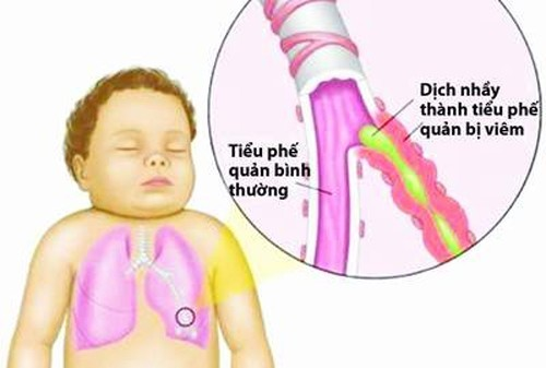 Viêm tiểu phế quản là bệnh thường gặp ở trẻ