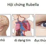 Rubella nguy hiểm như thế nào?