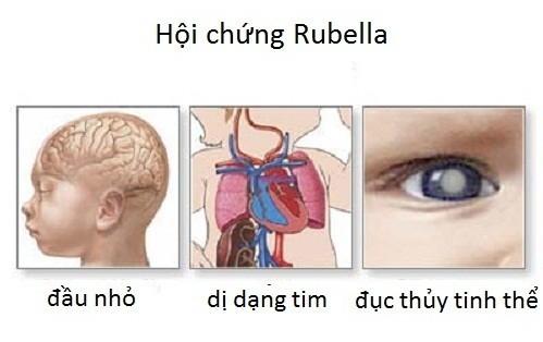 Bệnh rubella nguy hiểm khôn lường