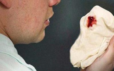 Tìm hiểu về hiện tượng ho ra máu