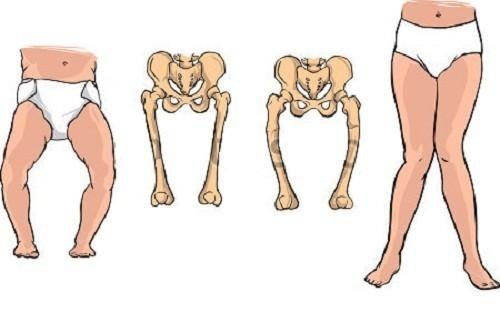 Trẻ bị còi xương ảnh hưởng đến sự phát triển của trẻ