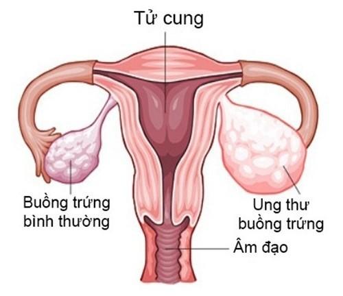 u-nang-buong-trung-va-nhung-dieu-ban-can-biet-6