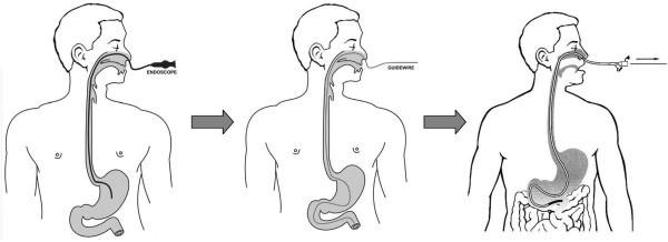 Nội soi dạ dày qua đường mũi là phương pháp đưa ống nội soi luồn qua đường mũi, qua ngả hầu họng xuống đến thực quản, dạ dày, hành tá tràng, tá tràng để quan sát bề mặt niêm mạc