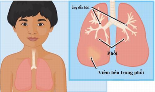 Bệnh viêm phổi diễn biến rất nhanh ở trẻ nhỏ
