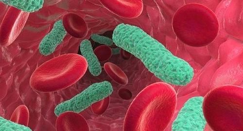 i khuẩn từ phổi có thể xâm nhập vào hệ tuần hoàn dẫn đến nhiễm trùng máu