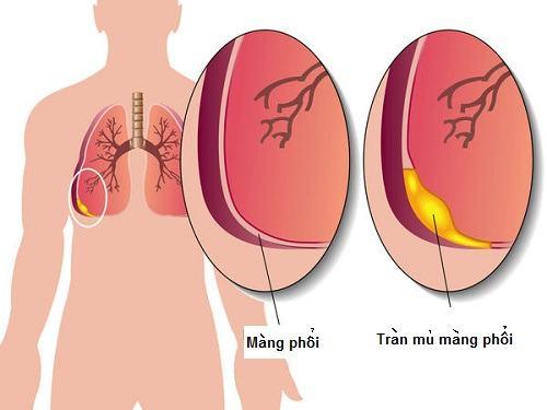 à một trong những Viêm mủ màng phổi là biến chứng nghiêm trọng, khi đó các bé sẽ  bị sốt cao, suy nhược, ho, khó thở