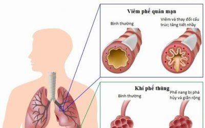 4 nguyên nhân chính gây viêm phổi tắc nghẽn mạn tính