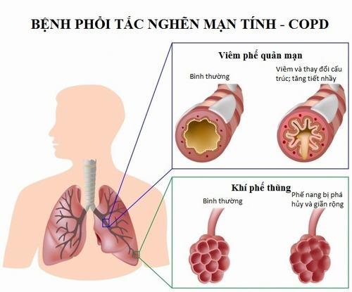 Viêm phổi tắc nghẽn mạn tính là một bệnh lý khá nguy hiểm