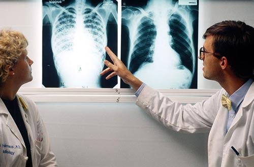 Bạn nên đến cơ sở chuyên khoa để thăm khám khi nghi ngờ lao phổi
