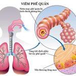 6 bệnh viêm phổi và viêm phế quản thường gặp ở trẻ