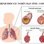 Bệnh phổi tắc nghẽn mạn tính – những điều cần biết