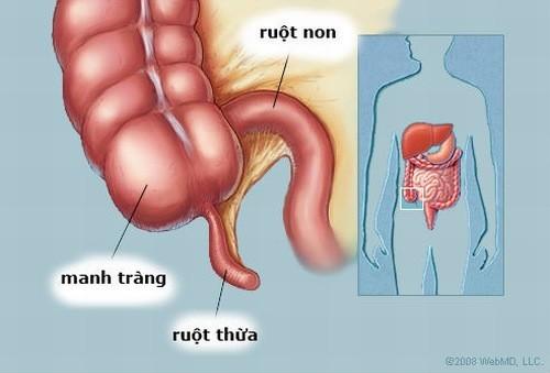 Viêm ruột thừa cần được phát hiện sớm và cấp cứu kịp thời