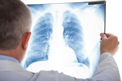 Sưng phổi là một trong những bệnh lý về phổi nguy hiểm