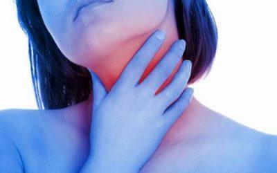 Các dạng viêm họng mạn tính thường gặp