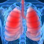 Dấu hiệu viêm phổi bạn cần điều trị ngay